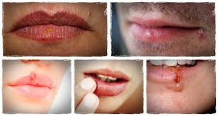 How To Get Rid Of Cold Sore Fast Gallery   How To Get Rid Of Cold